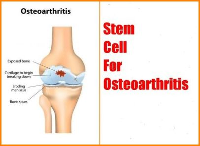 stem cell osteoarthritis treatment