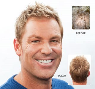 Shane Warne Stem Cell Hair Loss Therapy Good Or Bad Will It Work