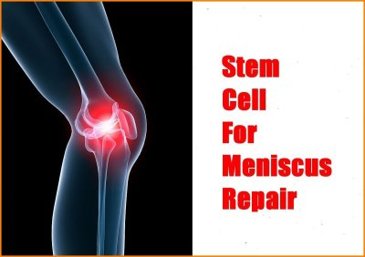 stem cell meniscus repair